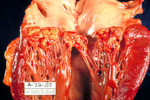"""""""Haemophilus parainfluenzae Endocarditis PHIL 851 lores"""" Licensed under Public domain via Wikimedia Commons"""