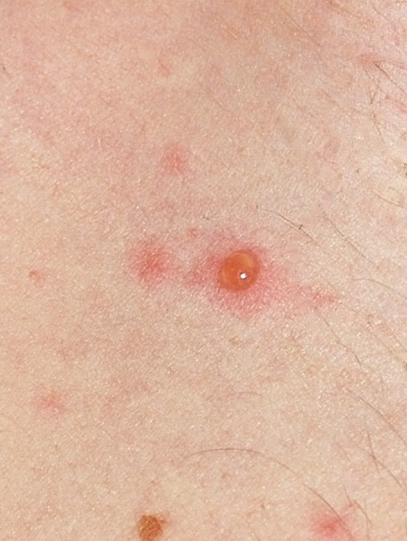 """""""Chickenpox blister"""" by F malan - Own work. Licensed under Creative Commons Attribution-Share Alike 3.0 via Wikimedia Commons - http://commons.wikimedia.org/wiki/File:Chickenpox_blister.jpg#mediaviewer/File:Chickenpox_blister.jpg"""