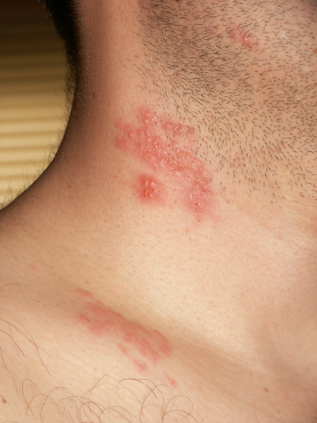 John Pozniak , with zoster blisters on his neck and shoulder. Taken May 5, 2006, in San Jose, California, United States. Copyright © 2006, John Pozniak , and released under the terms of the GNU Free Documentation License ver. 1.2 or any later version.