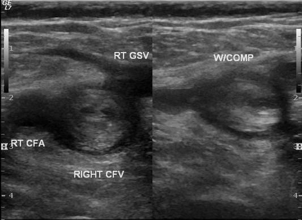 Case courtesy of Dr Ali AbouGazia,  Radiopaedia.org . From the case  Lower limb deep venous thrombosis  (DVT)