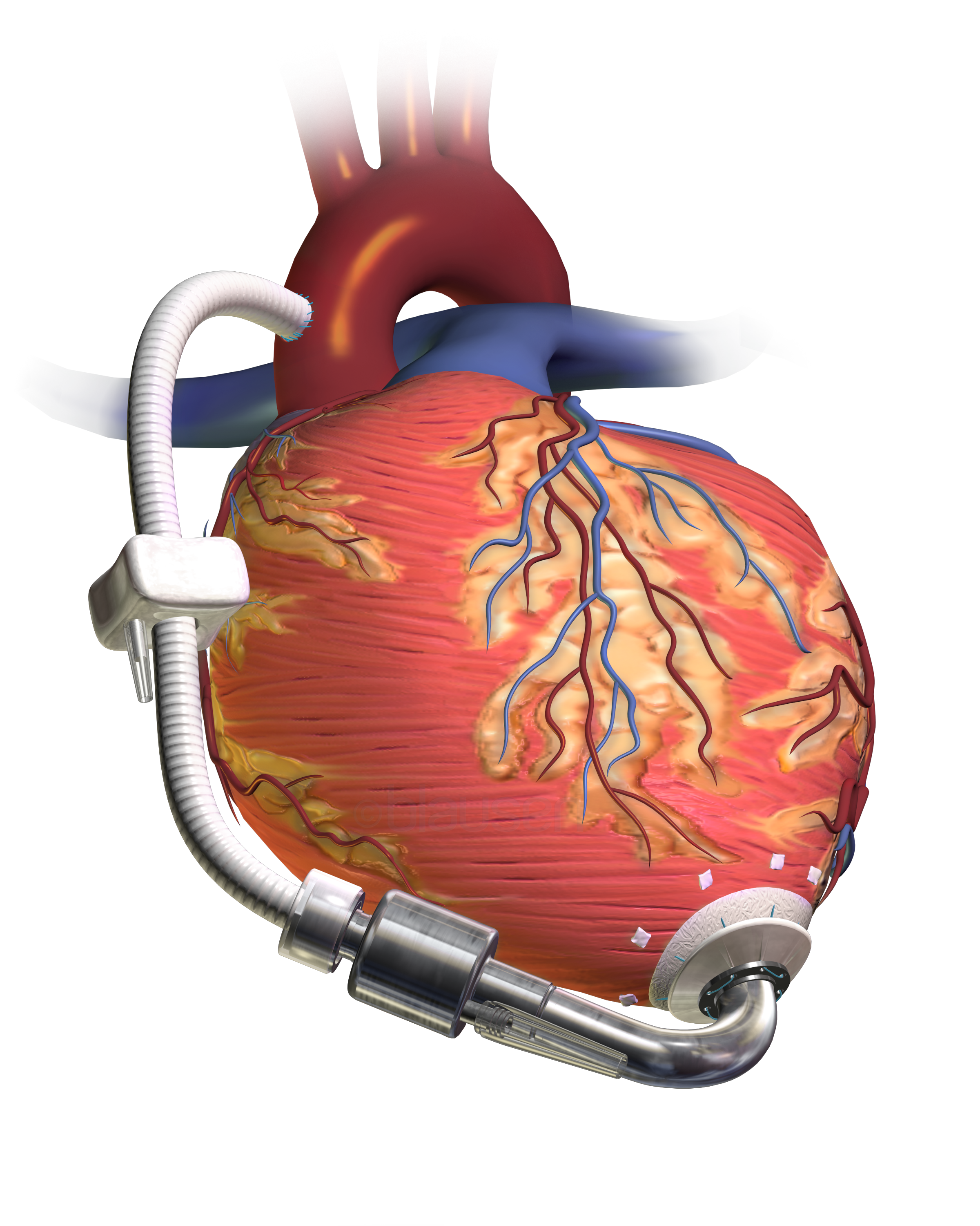 https://upload.wikimedia.org/wikipedia/commons/5/56/Blausen_0621_LVAD.png