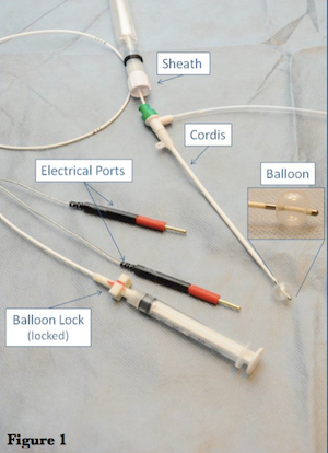 Transvenous Pacemaker Taming The Sru