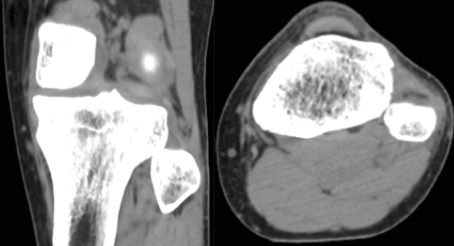 AP and Axial CT images showing an anterolateral fibular head dislocation