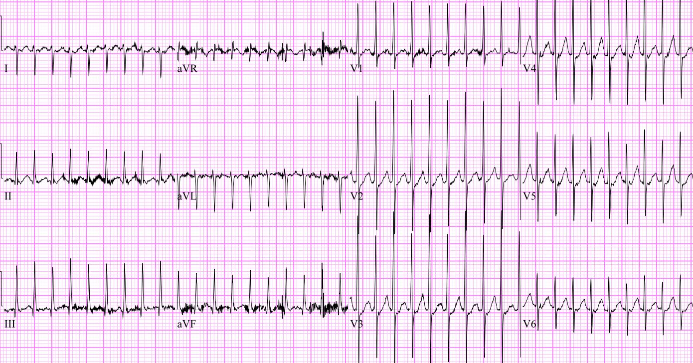This EKG shows a narrow complex, regular tachycardia consistent with supraventricular tachycardia