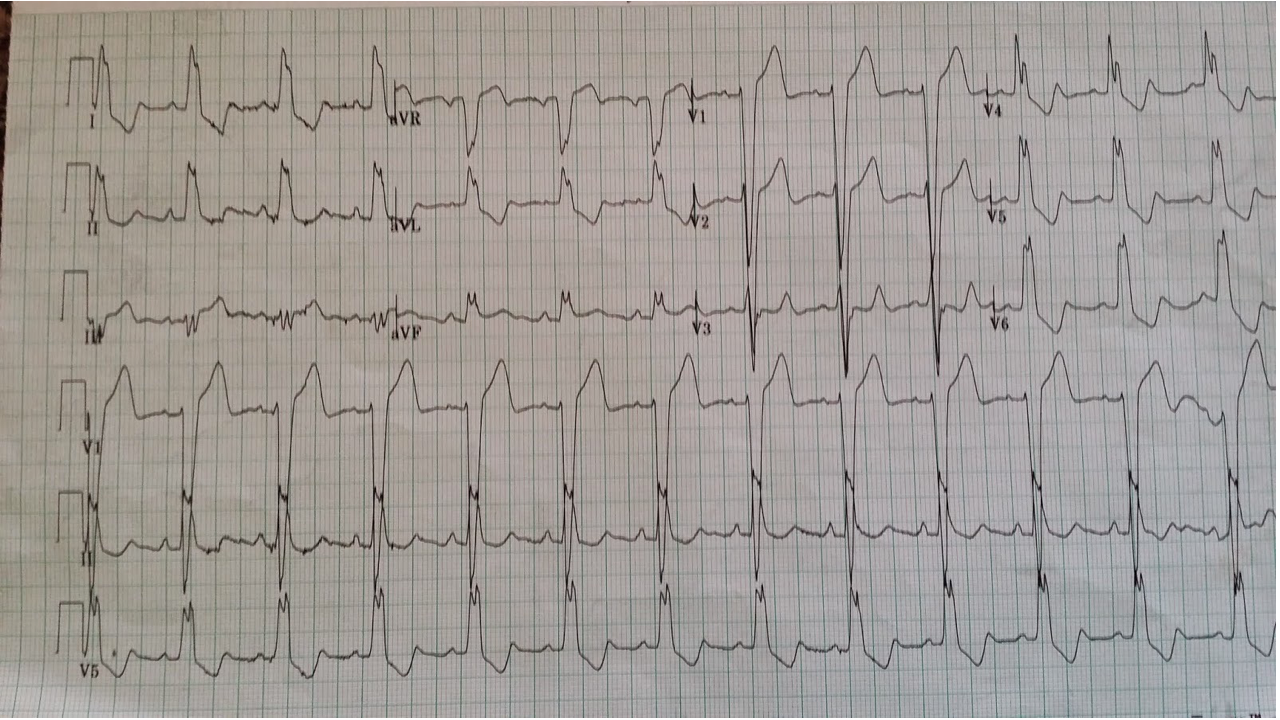 Subtle sgarbossa positive concordant ST-elevation in aVF, modified-sgarbossa positive discordant ST-elevation in III (1 mm ST-elevation / 3 mm QRS amplitude = 0.33 ratio). http://hqmeded-ecg.blogspot.com/2014/10/some-cardiologists-still-are-not.html