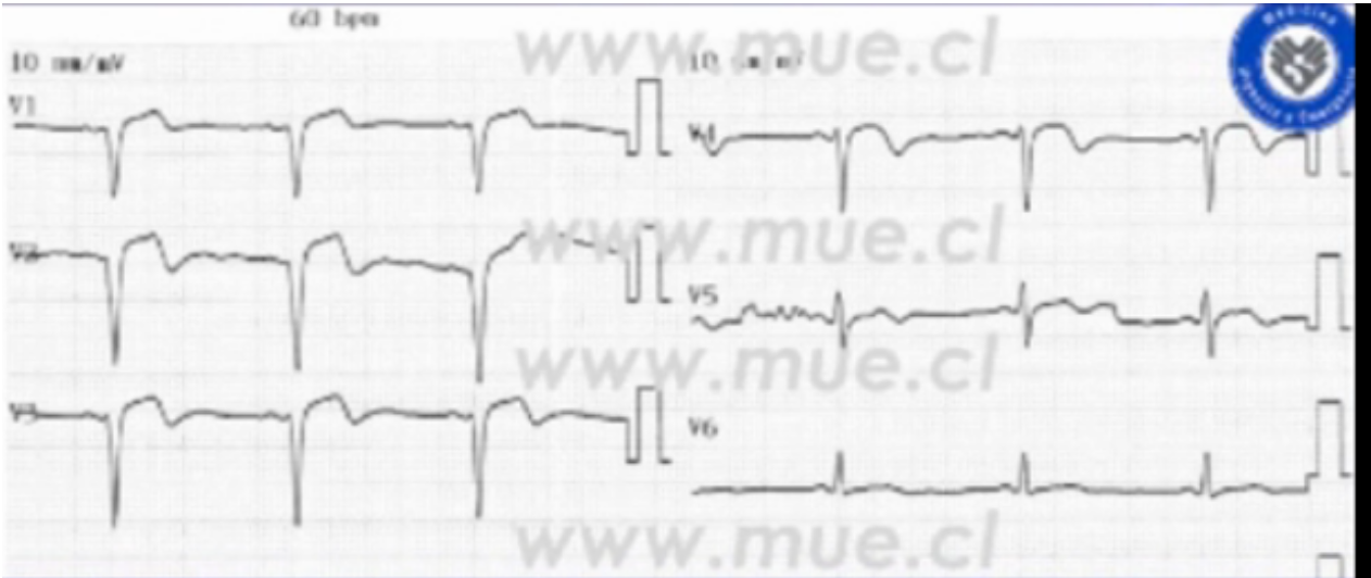 Now full blown STEMI, R waves are severely diminished lost, irreparable damage has occurred. Courtesy Dr. Nicolas Pineda (Chile)  https://ecgweekly.com/2015/06/amal-mattus-ecg-case-of-the-week-june-29-2015/
