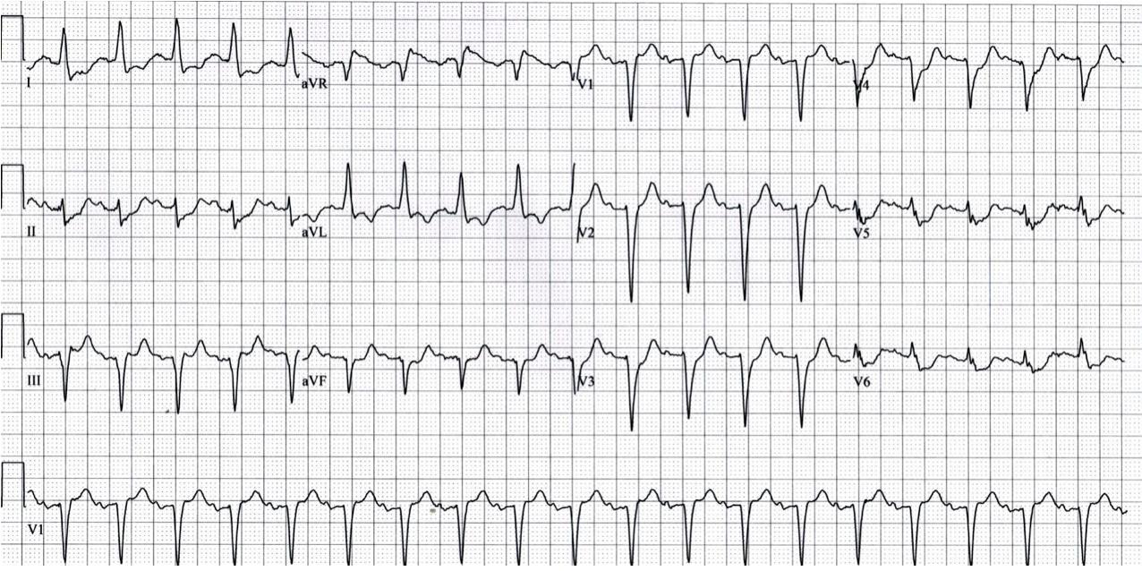 ST-depression I, aVL, II, aVF, V3-V6, and ST-elevation in aVR.100% left main occlusion. http://lifeinthefastlane.com/ecg-library/lmca/ Example 2