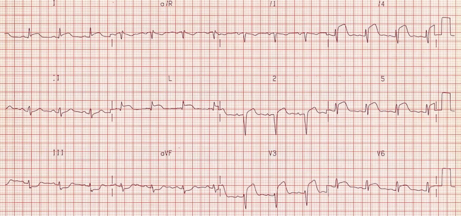 Anterolateral STEMI, note reciprocal depressions in III and aVF, Culprit artery LAD.  http://lifeinthefastlane.com/ecg-library/anterior-stemi/