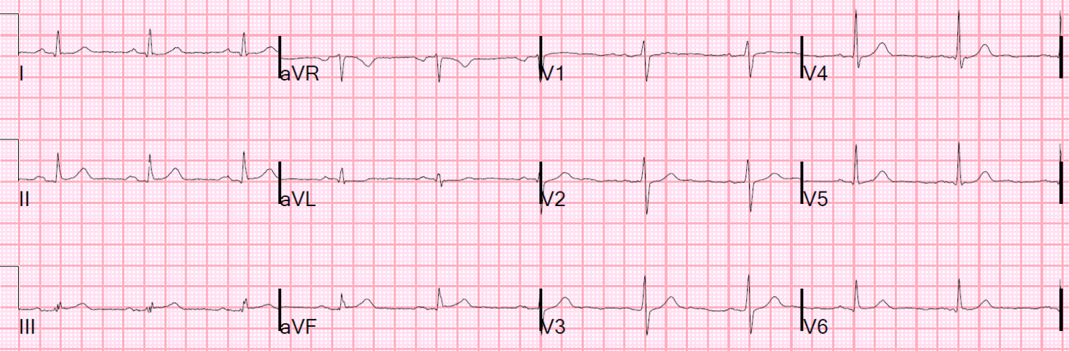 Interpretation: <1mm ST-elevation inf. leads, ST-depression in aVL!  http://hqmeded-ecg.blogspot.com/2015/06/unstable-angina-still-exists-beware.html?m=1