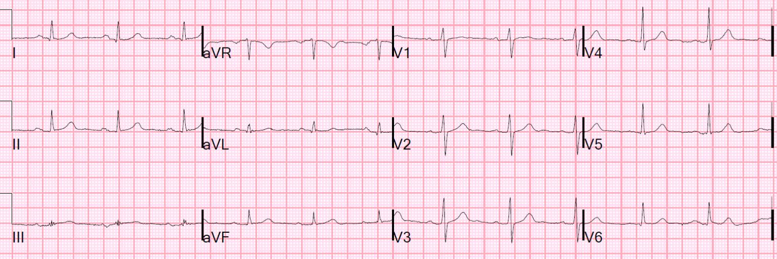 Interpretation: Normal. http://hqmeded-ecg.blogspot.com/2015/06/unstable-angina-still-exists-beware.html?m=1