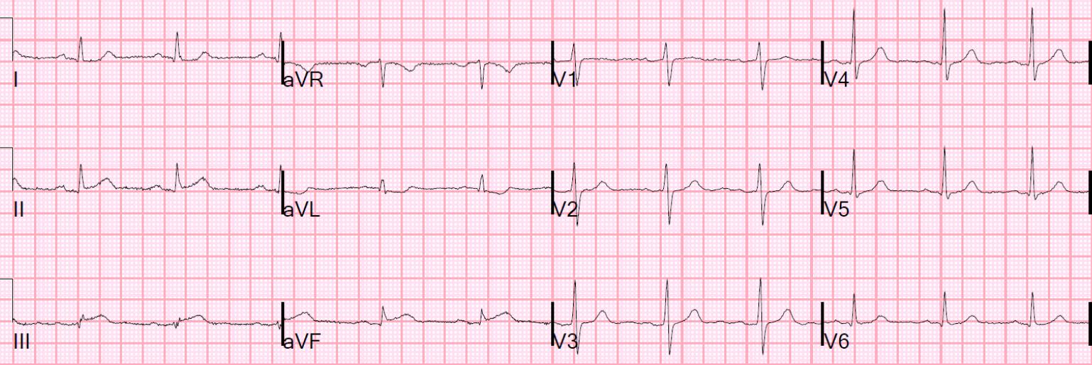 Interpretation: ST-elevation II, III, aVF, ST-depression I, aVL, RCA occlusion. http://hqmeded-ecg.blogspot.com/2015/06/unstable-angina-still-exists-beware.html?m=1