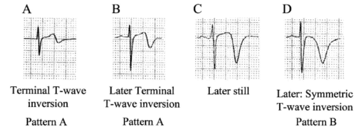 "Verouden NJ, Koch KT, Peters RJ, et al. Persistent precordial ""hyperacute"" T-waves signify proximal left anterior descending artery occlusion. Heart. 2009;95(20):1701-6.    http://www.ncbi.nlm.nih.gov/pubmed/19620137"