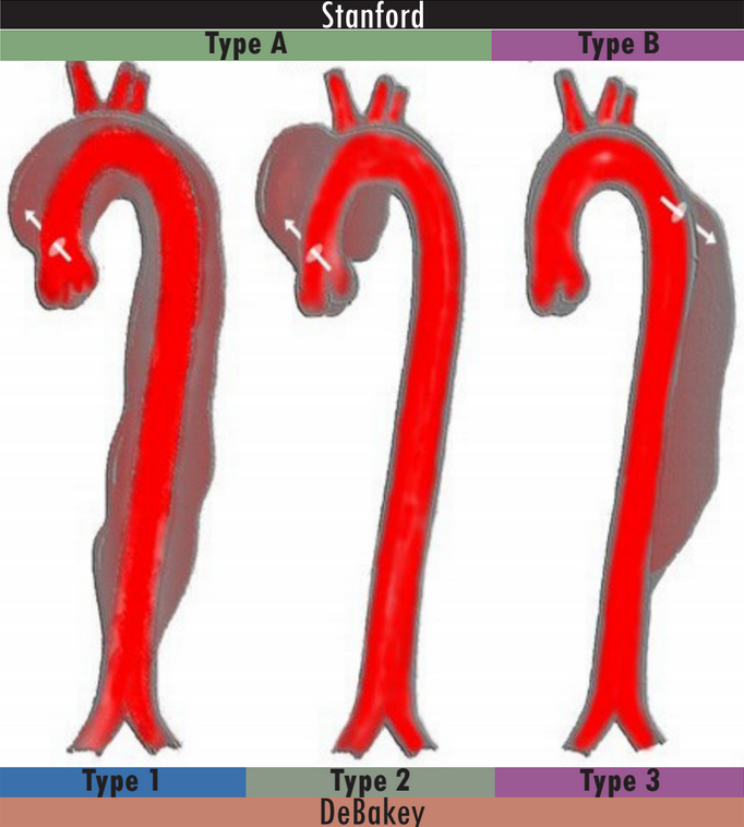 Modified from http://cdn.lifeinthefastlane.com/wp-content/uploads/2010/03/aortic-dissection-classification.jpg