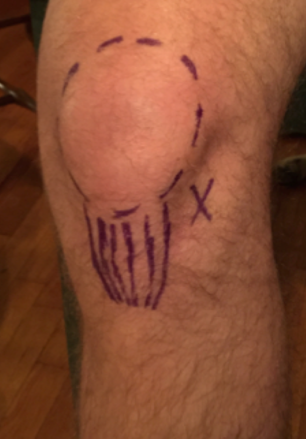 Knee Joint - Inferolateral Approach for Arthrocentesis