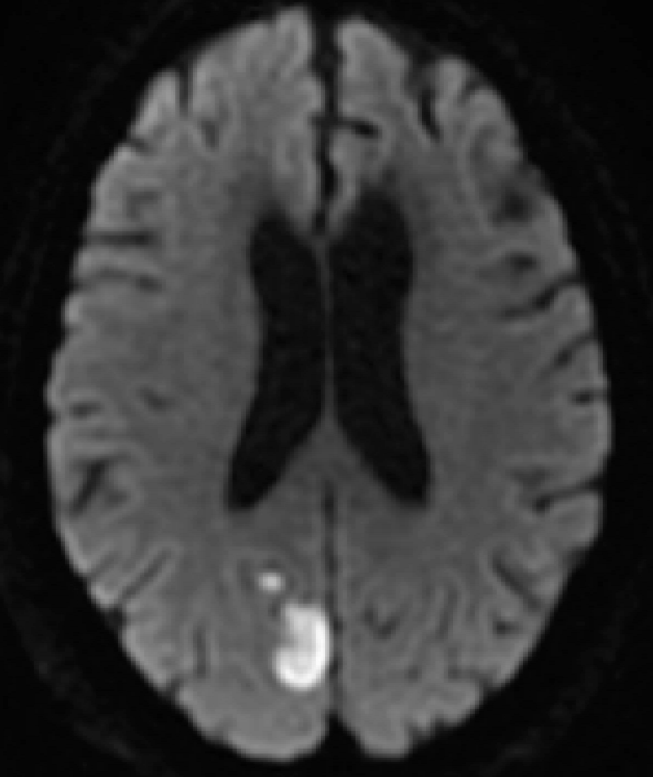 Figure 1. Diffusion weighted MRI of the brain without contrast. Acute ischemic infarct can be seen in the right occipital region.