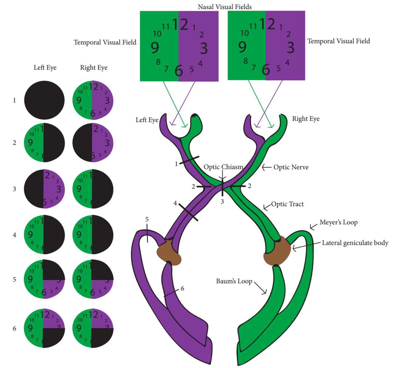 Figure 2.Visual Field Pathways, location of potential lesions causing neuro-ophathalomic vision loss and their associated deficits. [10]