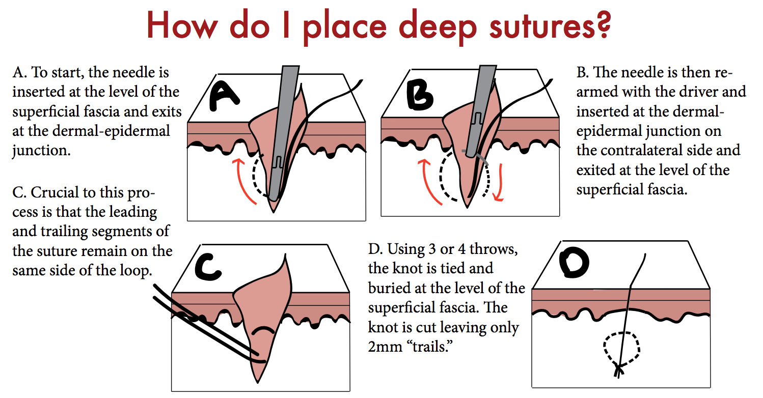 DIAGRAM BY RILEY GROSSO, MD.THIS WORK IS LICENSED UNDER A  CREATIVE COMMONS ATTRIBUTION-NONCOMMERCIAL-SHAREALIKE 4.0 INTERNATIONAL LICENSE .
