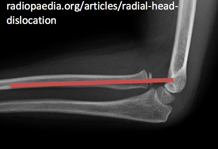 Radial Head Dislocation (radiocapitellar line does not intersect capitellum)