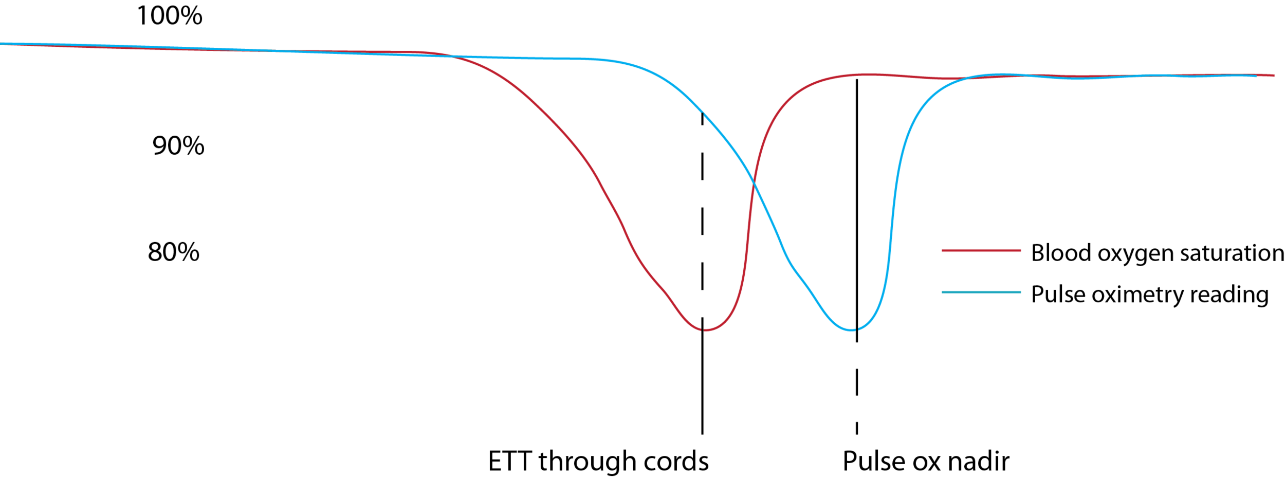 Graph displaying the false reassurance of the high pulse ox (blue) when the ETT goes through the cords, despite hypoxemia (red). Then the falsely concerningly low pulse ox nadir, although the true saturation has already recovered.
