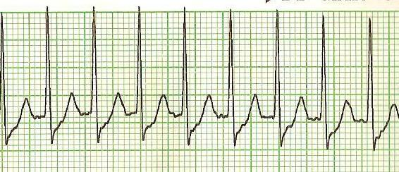 Supraventricular tachycardia (SVT) by wikimedia https://upload.wikimedia.org/wikipedia/commons/b/bc/SVT_Lead_II-2.JPG