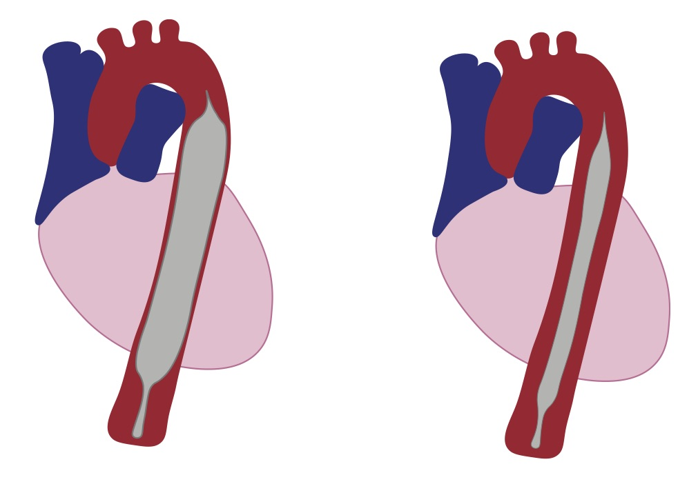 Figure 1. This cartoon shows the balloon of the IABP sitting in the descending aorta. The image on the left shows the balloon inflated during diastole and the image on the right shows the balloon deflated in systole. Image was created by  GRACE LAGASSE, MD. THIS WORK IS LICENSED UNDER A CREATIVE COMMONS ATTRIBUTION-NONCOMMERICAL-SHARELIKE 4.0 INTERNATIONAL LICENSE.