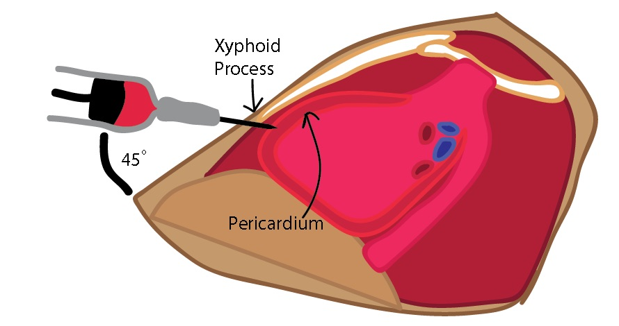 A representative illustration of a sagittal cut through the chest of a patient with a pericardial effusion, with a spinal needle angled at 45 degrees inserted under the xiphoid process. Image created by Dr. Riley Grosso. THIS WORK IS LICENSED UNDER A CREATIVE COMMONS ATTRIBUTION-NONCOMMERICAL-SHARELIKE 4.0 INTERNATIONAL LICENSE.
