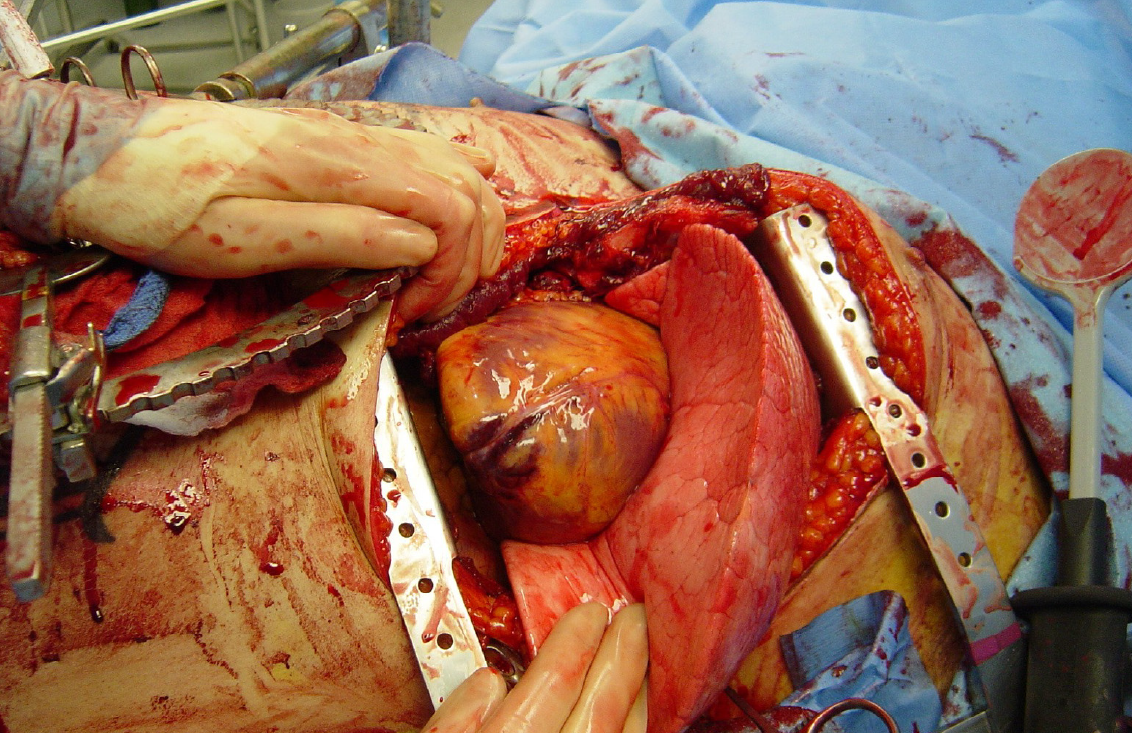 Emergency_Thoracotomy.png