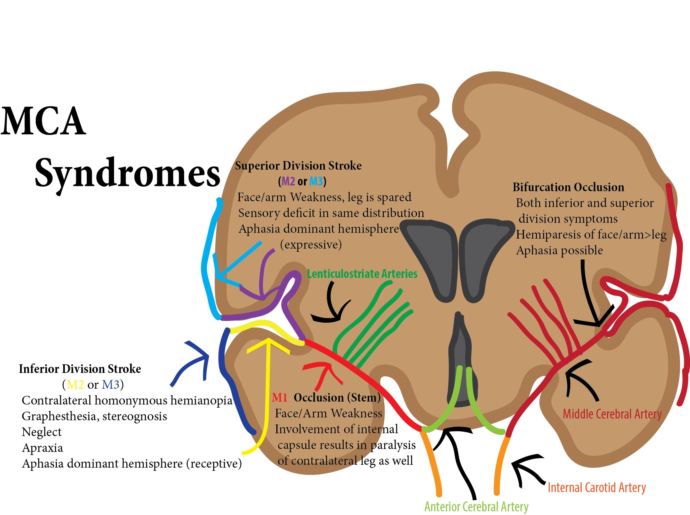 MCA syndromes.jpg
