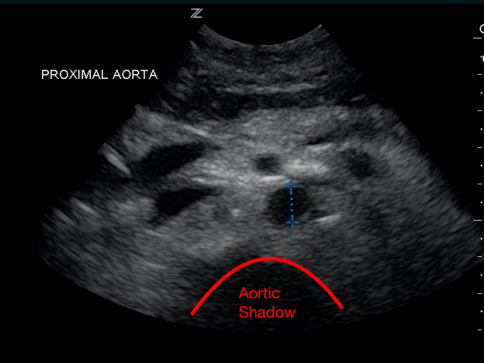 aorta vert. shadow.png