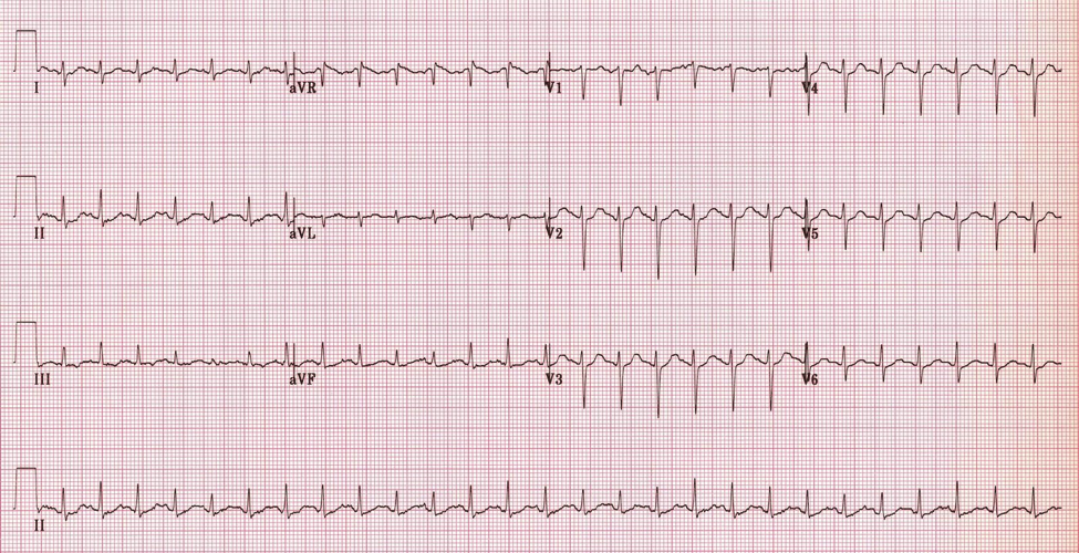 Sinus tachycardia with rate related ST changes (4)