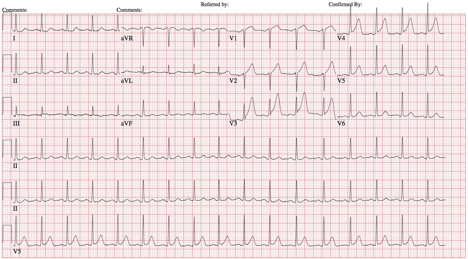 Hyperacute T wave.png