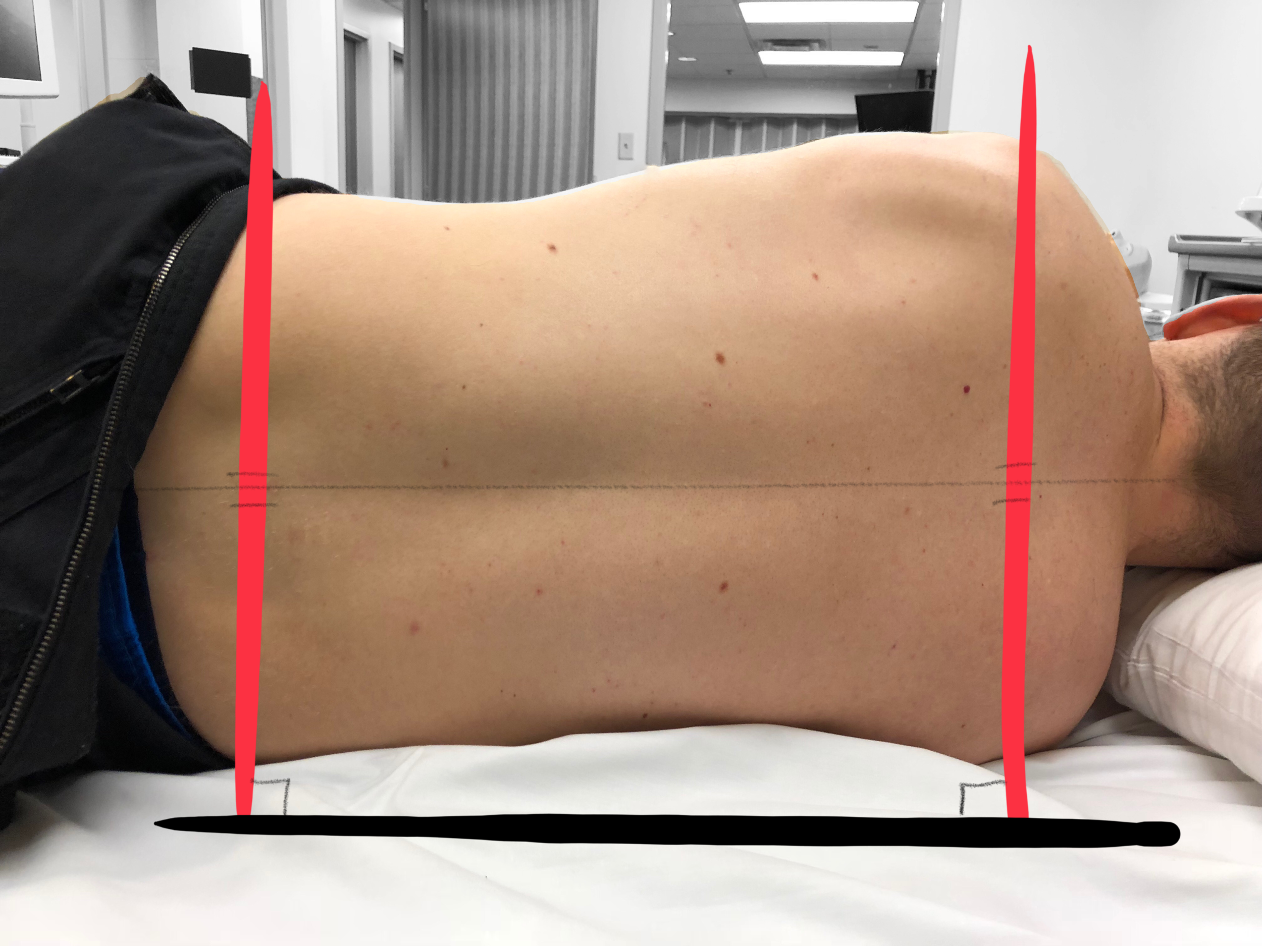 Image 4 - Good Lateral decubitus positioning -  note the shoulders and hips are parallel to each other and perpendicular to the bed, making external landmarks more easy to visualize