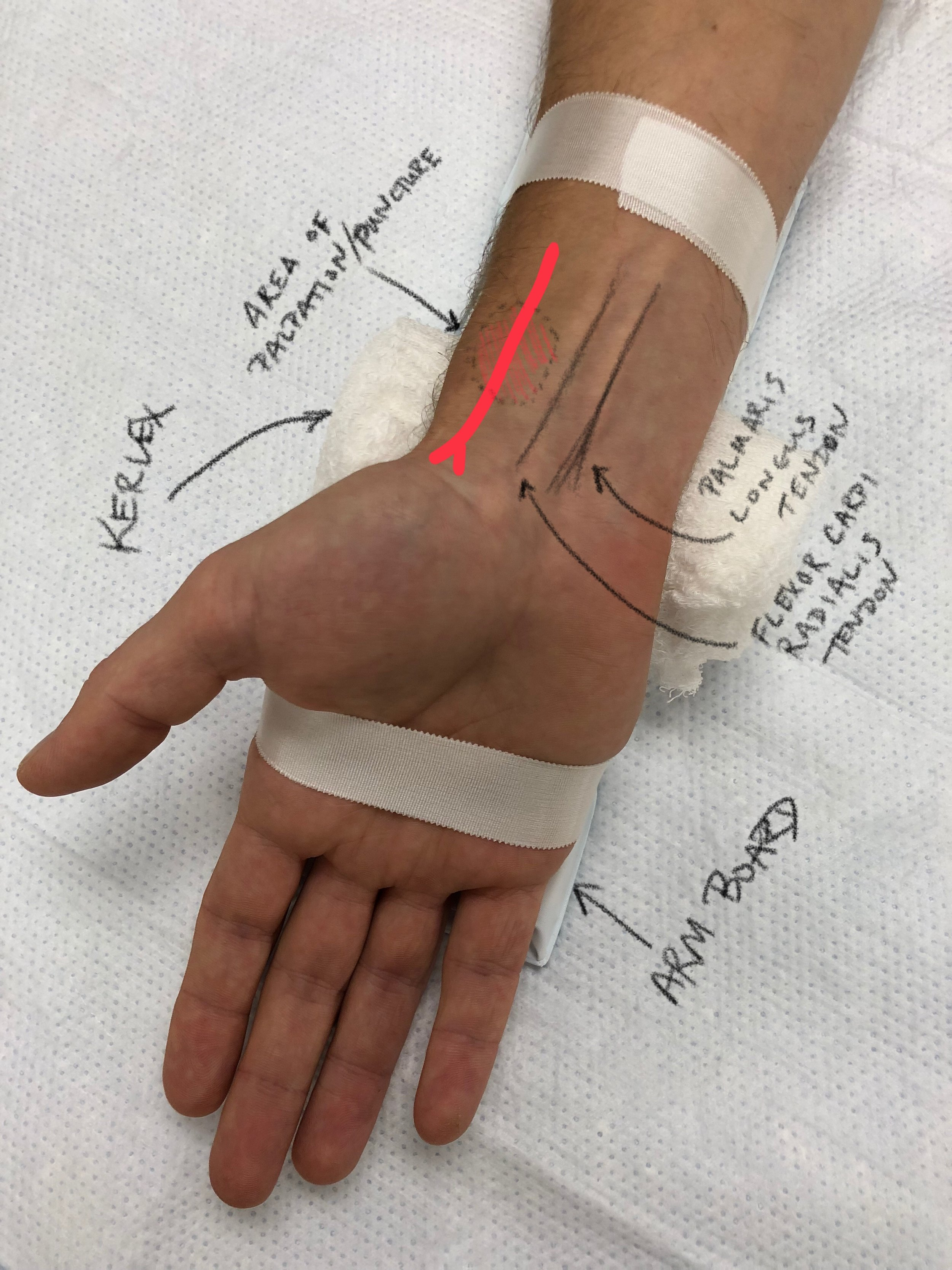 Figure 1: Set Up and Anatomy for Radial Arterial Line Placement - Short Arm Board, Kerlex, and Tape are used to Secure the Patients wrist during and following the procedure.