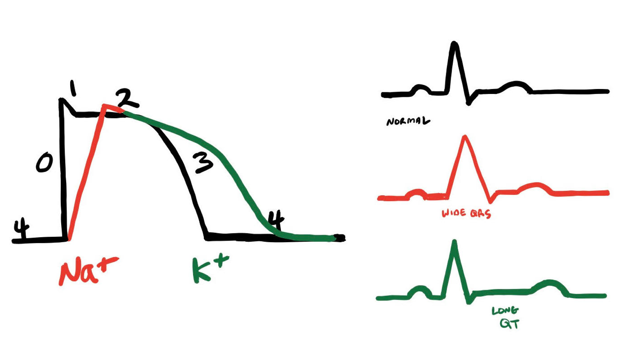 EKG Changes as a Result of Changes in Na or K Channel Conduction - Graphic by James Li, MD