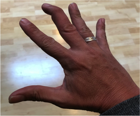Image 1. Middle Finger DIP in Unopposed Flexion due to Mallet Finger injury [3]
