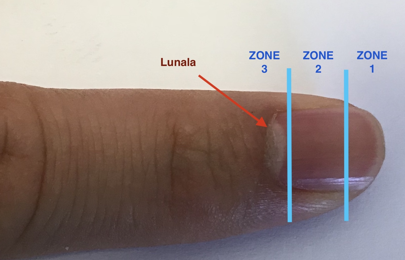Fingertip Injury Zones
