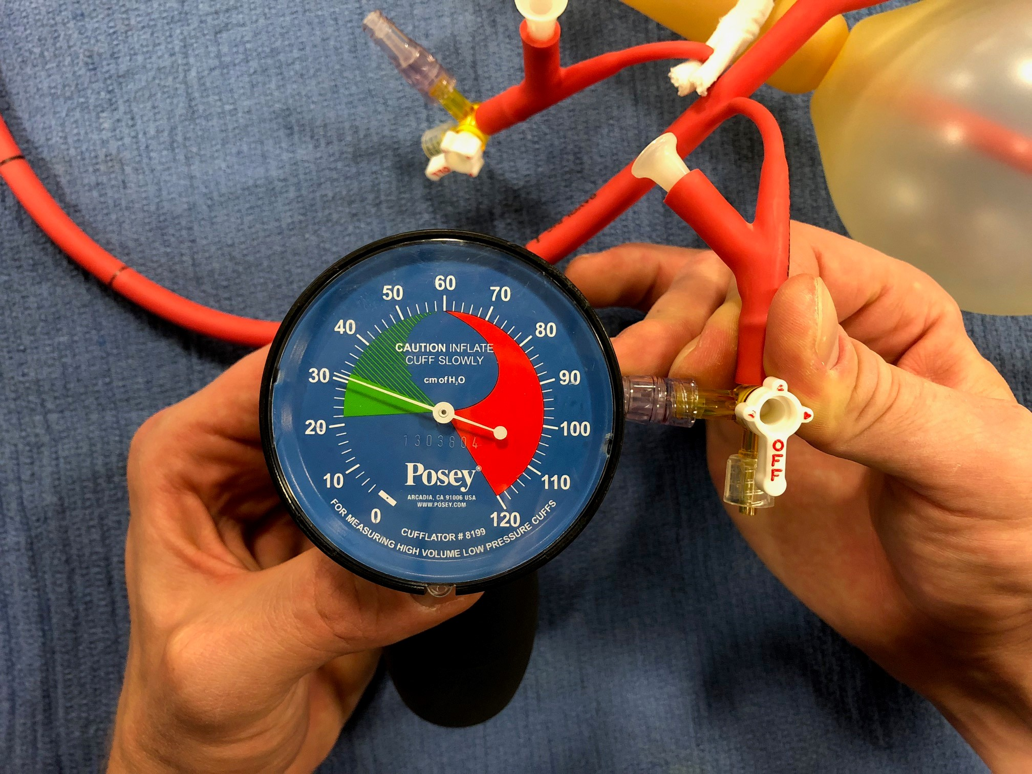 Picture 7: Using Cufflator inflate the esophageal balloon to 30 mmHg