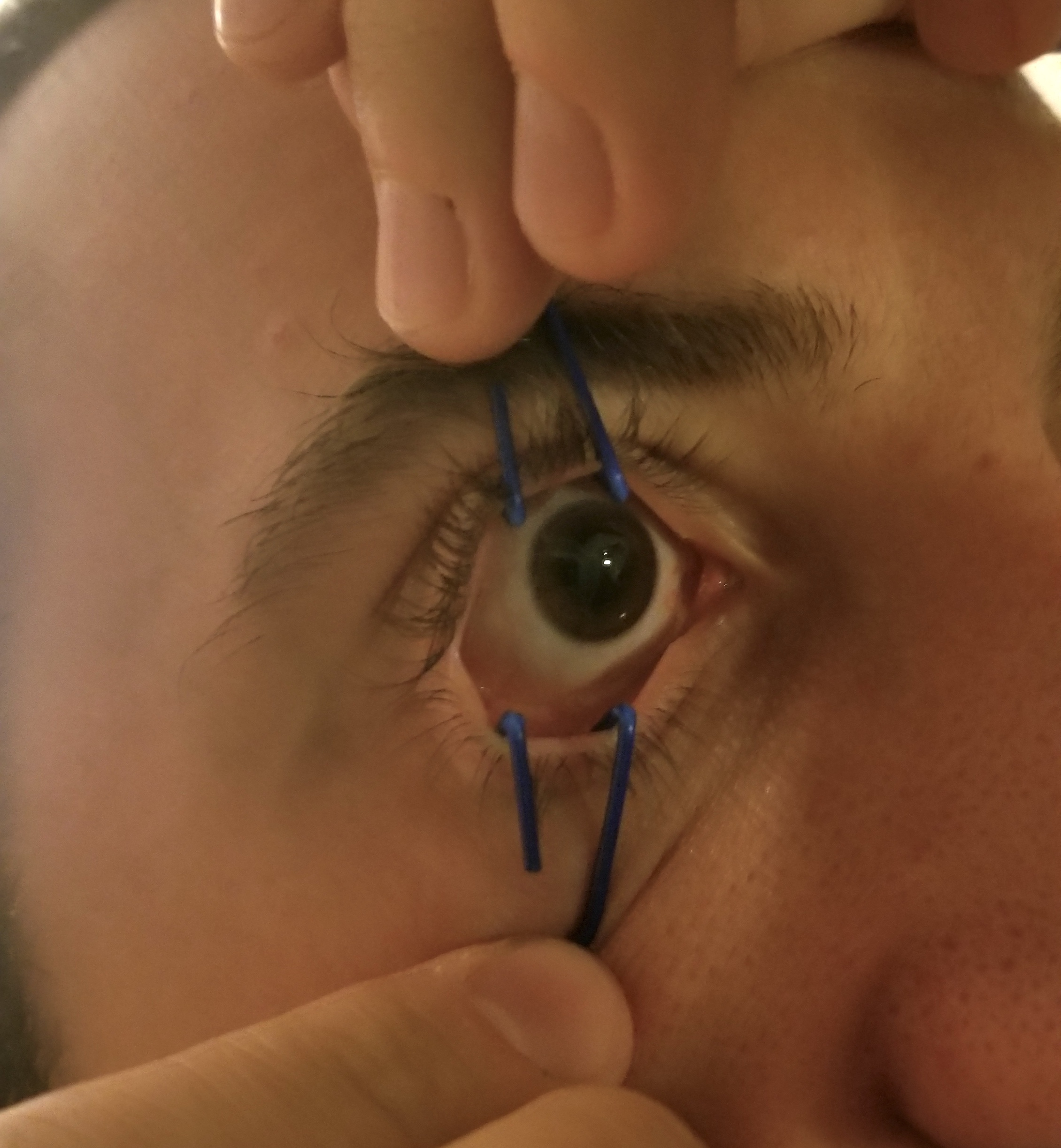 Image 2  - Paperclip Eyelid Retractors in Action  Photo courtesy of Michael Spigner, MD, PGY-3 University of Cincinnati Department of Emergency Medicine