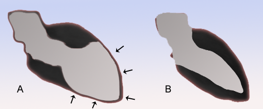 Figure 1. classic findings of Takotsubo cardiomyopathy. Image obtained from https://en.wikipedia.org/wiki/Takotsubo_cardiomyopathy.