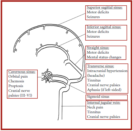 figure 2: anatomical locations of different venous sinuses with associated symptoms.