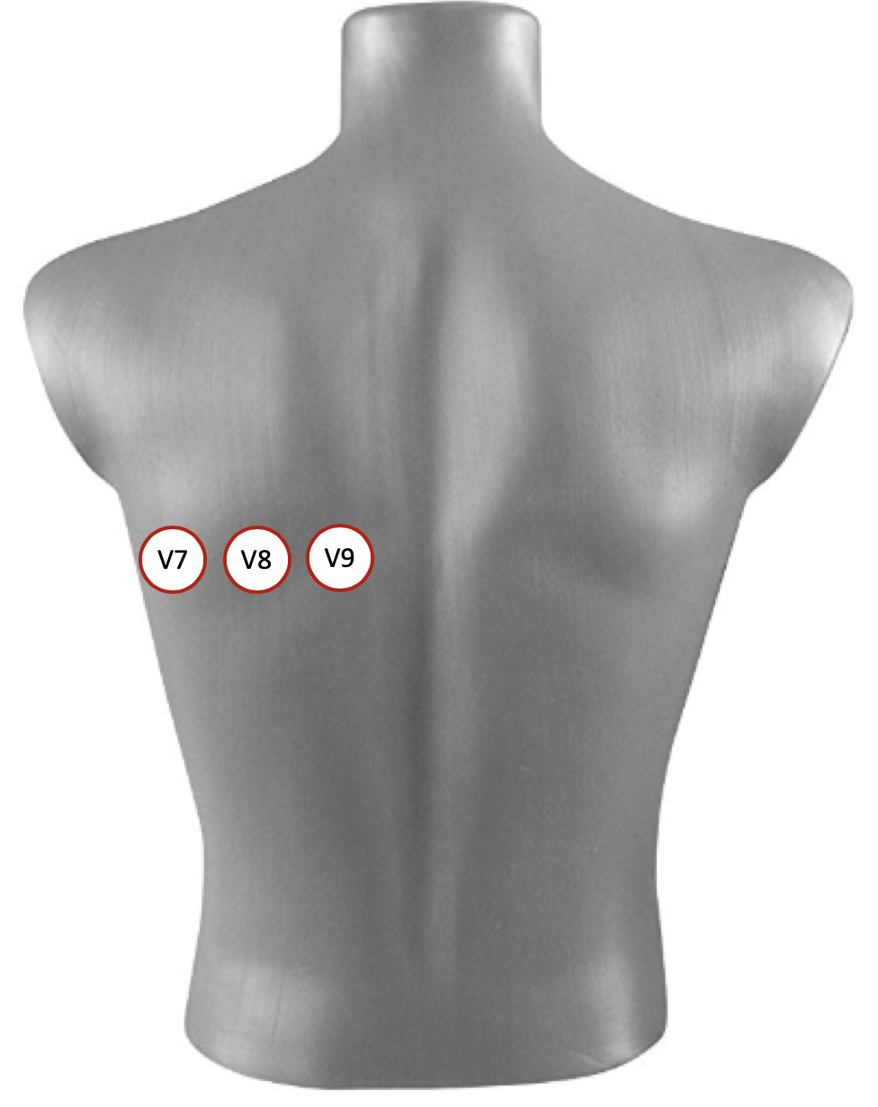 Figure 1. Placement of posterior leads V7-V9  V7 is placed at the posterior axillary line, in the same horizontal plane as V6. V8 is placed at the tip of the left scapula, in the same horizontal plane. V9 is placed in the left paraspinal region, in the same horizontal plane.