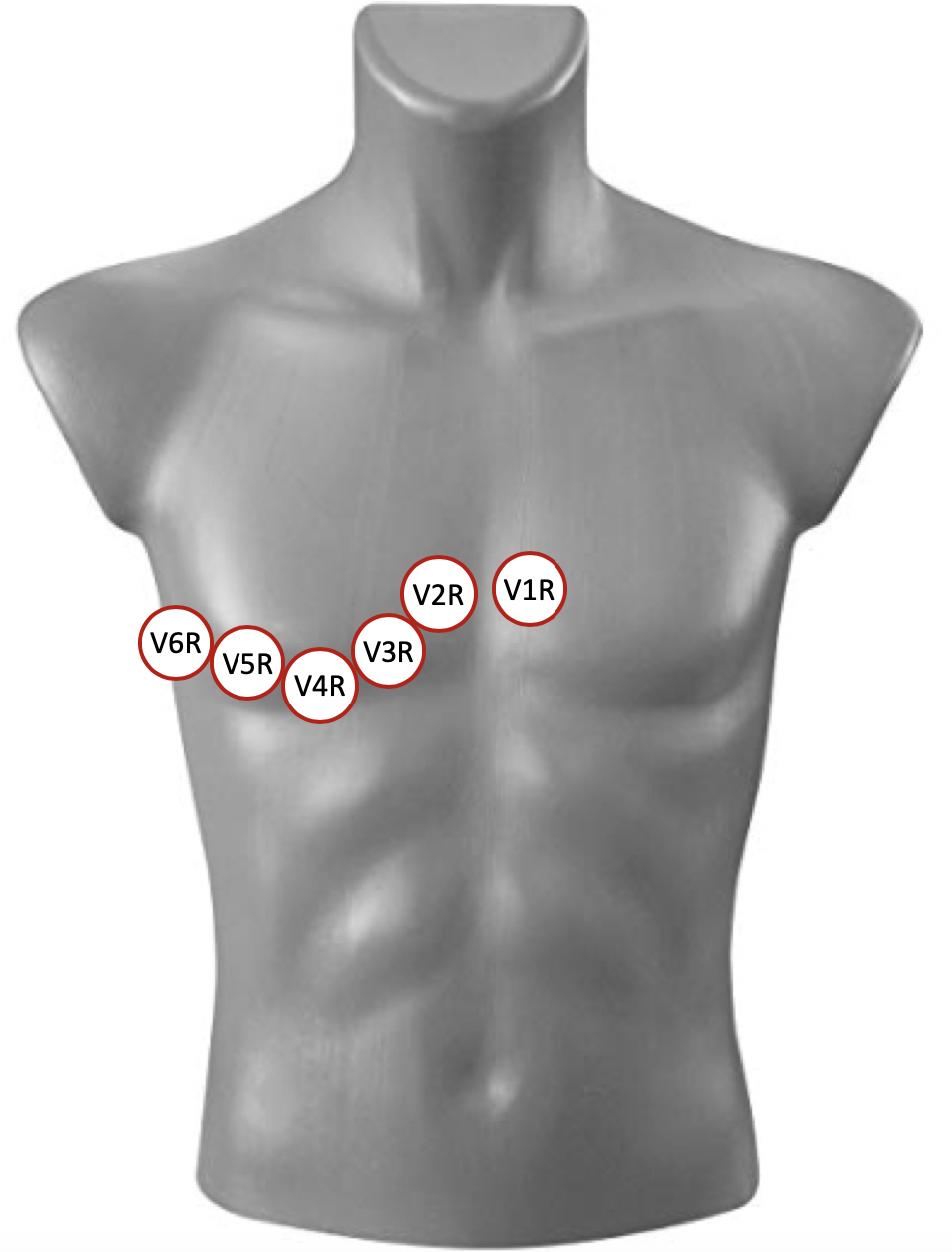 Figure 2. Placement of right-sided leads V1R-V6R  Right-sided leads are placed as a mirror image of the standard precordial leads. V1R is placed at the left sternal border, in the 4th intercostal space. V2R is placed at the right sternal border, in the 4th intercostal space. V3R is placed between V2R and V4R. V4R is placed at the mid-clavicular line, in the 5th intercostal space. V5R is placed at the anterior axillary line, in the 5th intercostal space. V6R is placed in the mid-axillary line, in the 5th intercostal space. Alternatively, V4R can be obtained as the sole right-sided lead, with the remaining precordial leads placed in standard fashion.