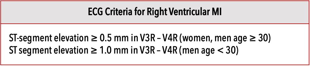 Table 2. ECG criteria for right ventricular infarction [9]