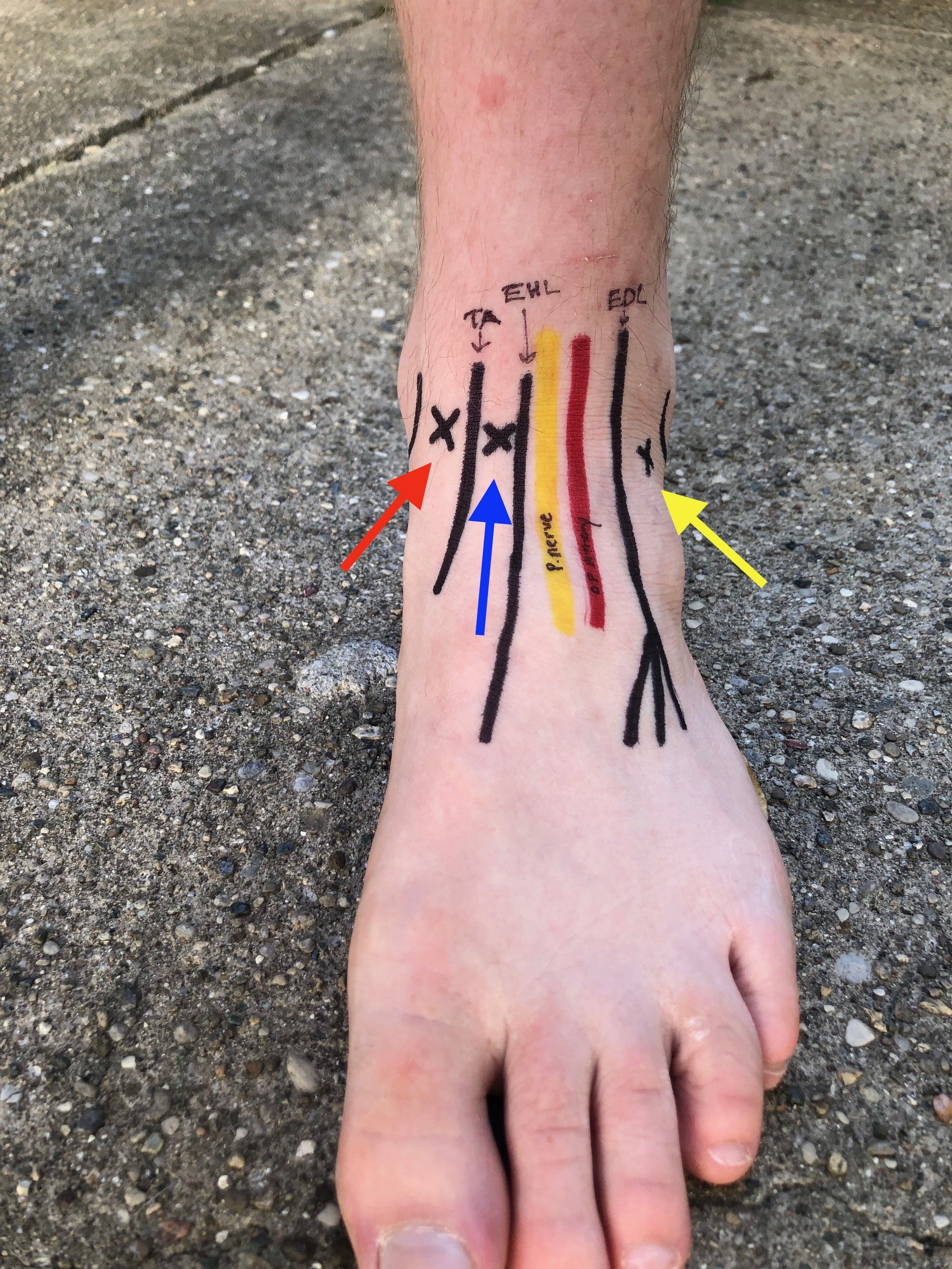 Fig 1. Variable approaches to Ankle Arthocentesis