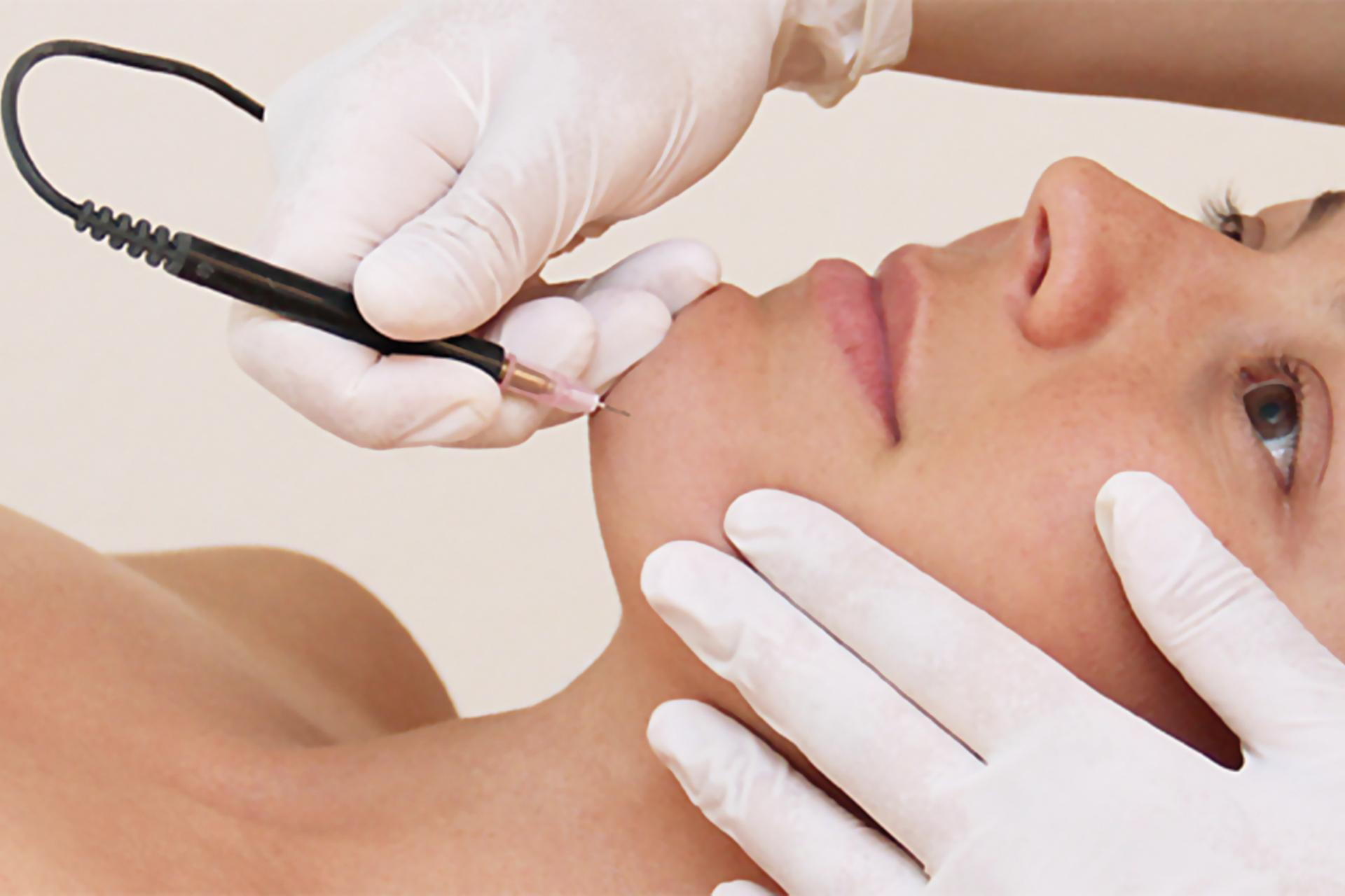 Electrolysis Hair Removal - Electrology is the use of electrical energy to destroy hair germ cells in the papilla. We use The Blend Method, which is a combination of High Frequency & Galvanic Current, directly into the hair follicle.The treatment is a little uncomfortable. When the current is released into the follicle, a slight stinging sensation is felt. The side effects are a little redness & soreness in the area immediately after treatment, which settles down in a few hours.Soothing lotions, aloe vera gel, paw paw ointment or a cool pack can be used to help speed up recovery. Keeping the area clean will avoid infections.This is the traditional method for permanent hair reduction. It is suitable for smaller areas like the face and for blonde or white hair where Intense Pulsed Light or Laser is not applicable.Minimum charge - 10 minutes $30.0030 minute treatment $50.001 hour treatment $90.00