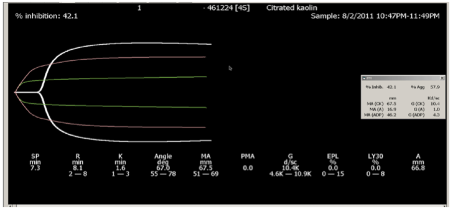 Fig. 2. PlateletMapping ADP tracing. White curve is the baseline. Green curve is the activator tracing (fibrin clot only).     Red curve is the ADP-activated platelets, showing the inhibition of the platelet inhibitor that the patient was taking.