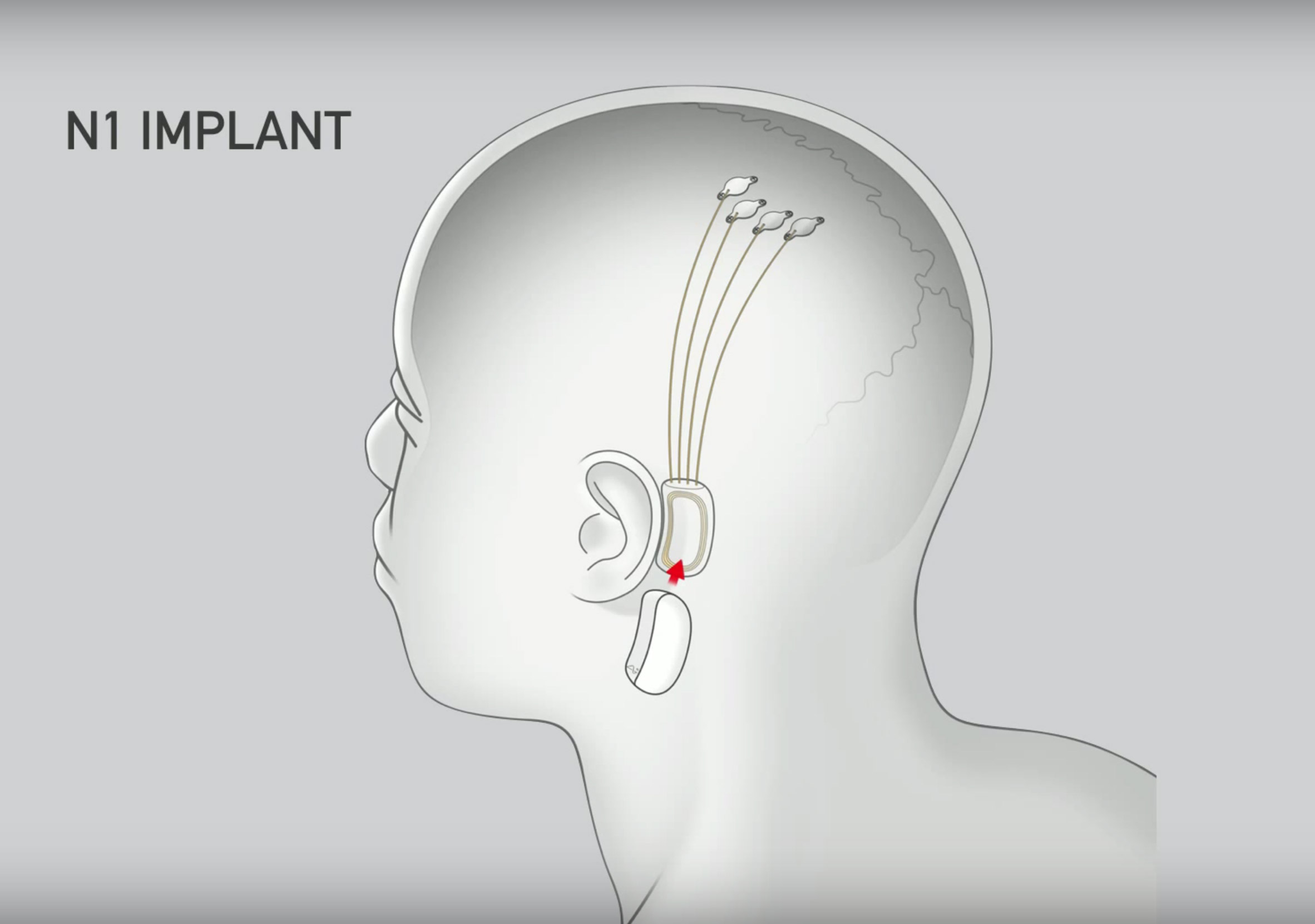 elon-musk-neuralink-technology-Visual Atelier 8-2.jpg