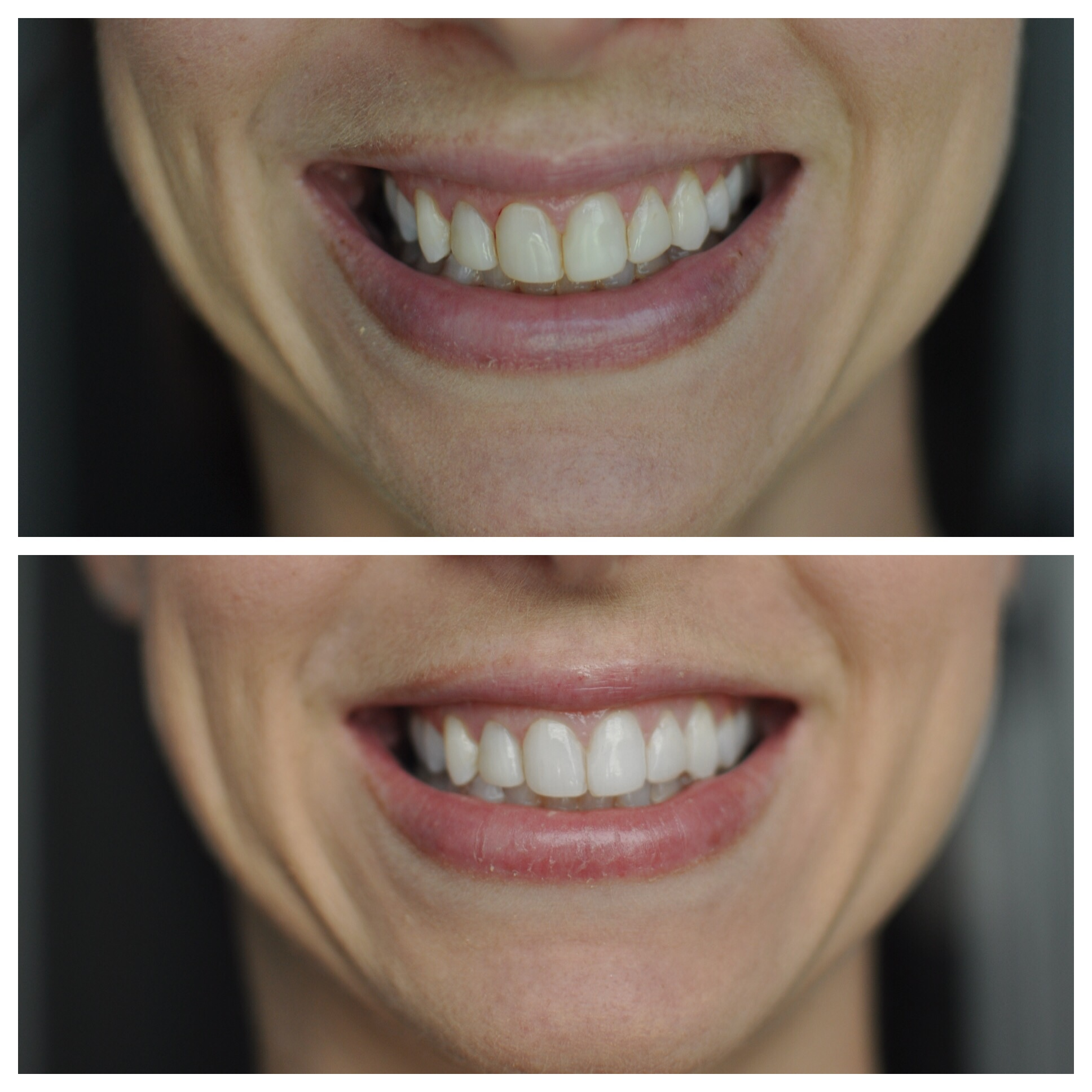 Teeth Before and After.jpg
