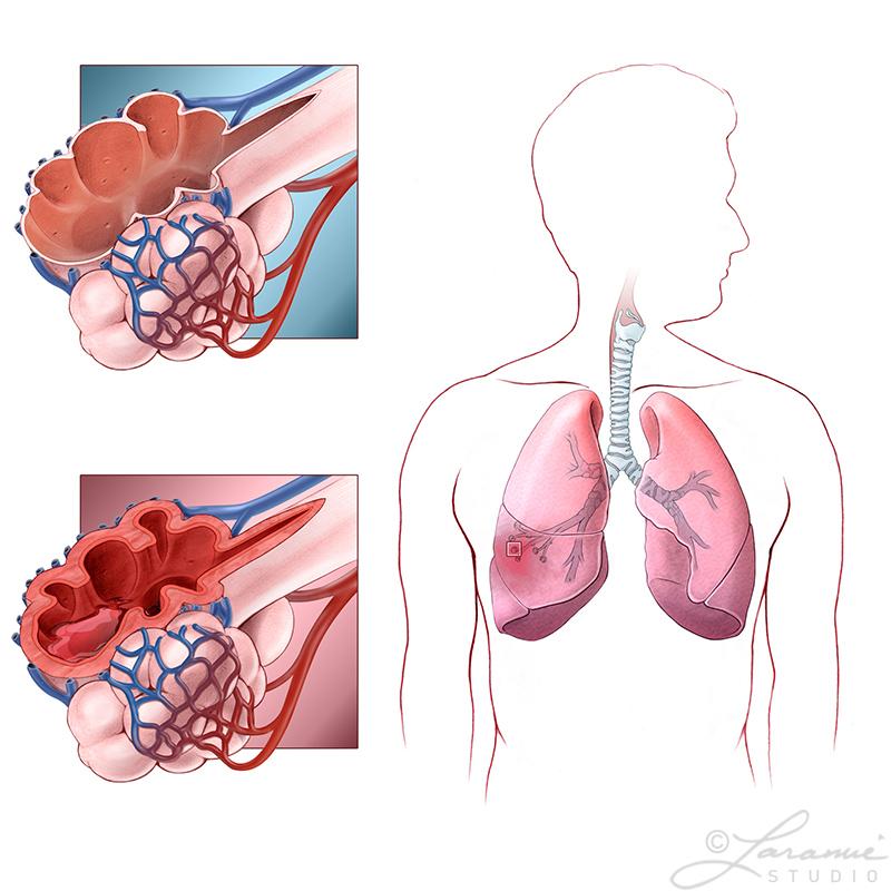 Pneumonitis