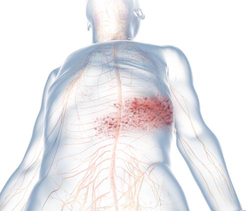 Herpes Zoster Virus (Shingles) Symptom